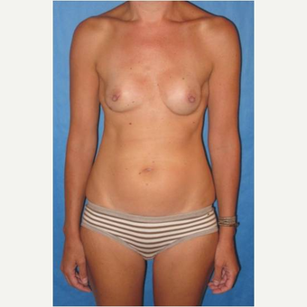 40 year old woman treated with nipple-sparing mastectomies and PAP flap Breast Reconstruction after 3724534