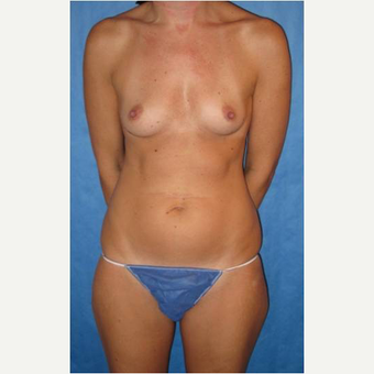 40 year old woman treated with nipple-sparing mastectomies and PAP flap Breast Reconstruction before 3724534