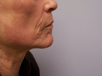 Ablative Laser Resurfacing after 696225