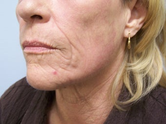 Ablative Laser Resurfacing 696225