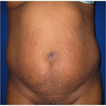 26 year old woman treated with Tummy Tuck before 3726670
