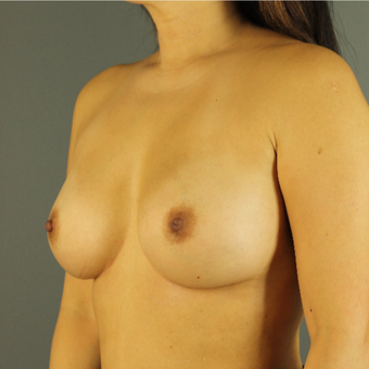 35-44 year old woman treated with Breast Implant Revision after 3043155