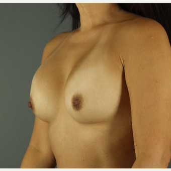 35-44 year old woman treated with Breast Implant Revision before 3043155