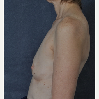 Breast Augmentation before 3816061