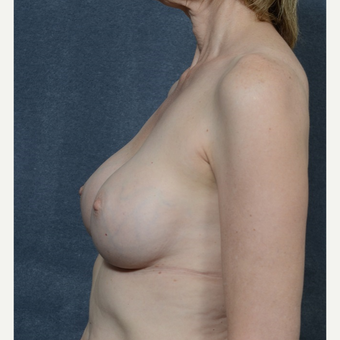 Breast Augmentation after 3816061