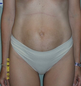 35-44 year old woman treated with Mini Tummy Tuck before 1745283