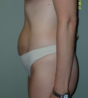 35-44 year old woman treated with Mini Tummy Tuck 1745283