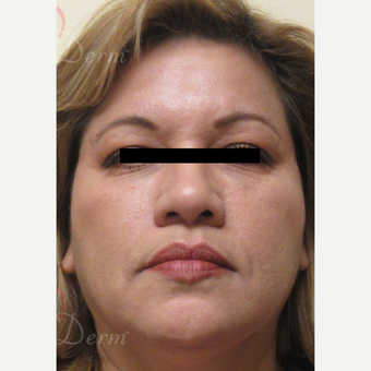45-54 year old woman treated with Liquid Facelift after 3607998