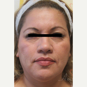 45-54 year old woman treated with Liquid Facelift before 3607998