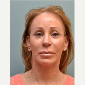 55-64 year old woman treated with Facelift after 3747641