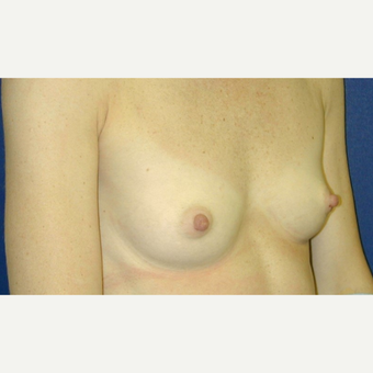 25-34 year old woman treated with Breast Augmentation before 3131793