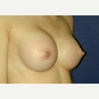 25-34 year old woman treated with Breast Augmentation after 3131793