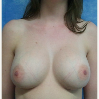 18-24 year old woman treated with Breast Augmentation after 3553416