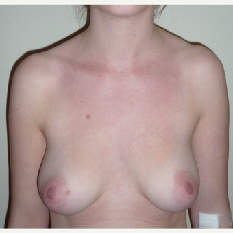 18-24 year old woman treated with Breast Augmentation before 3553416
