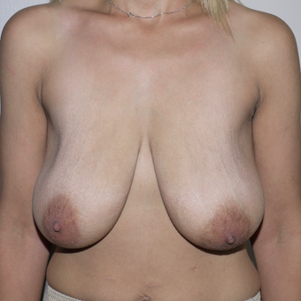 25-34 year old woman treated with Breast Lift before 3772388