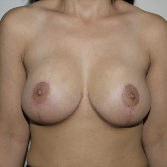 25-34 year old woman treated with Breast Lift after 3772388