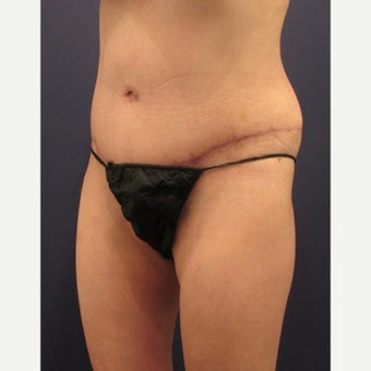 45-54 year old woman treated with Tummy Tuck after 2455491