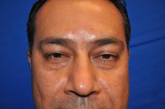 43 Year Old Male treated with Lower Eyelid Surgery to remove Puffy Eye Bags before 894614