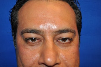 43 Year Old Male treated with Lower Eyelid Surgery to remove Puffy Eye Bags after 894614
