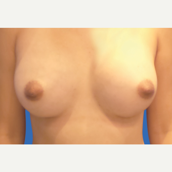 25-34 year old woman treated with Breast Augmentation after 3495137