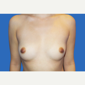 25-34 year old woman treated with Breast Augmentation before 3495137