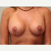 25-34 year old woman treated with Breast Lift after 3339078
