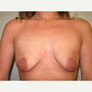 25-34 year old woman treated with Breast Lift before 3339078