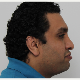 25-34 year old man treated with Rhinoplasty before 3340478