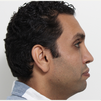25-34 year old man treated with Rhinoplasty after 3340478