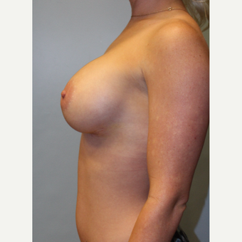 25-34 year old woman treated with Breast Augmentation after 3754140