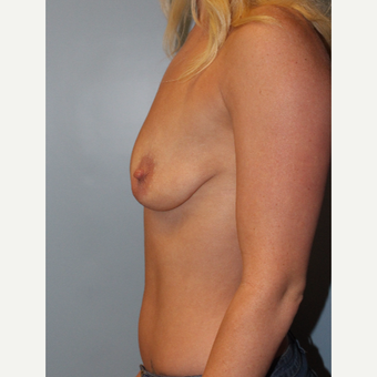 25-34 year old woman treated with Breast Augmentation before 3754140