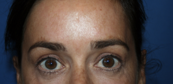 35-44 year old woman treated with Brow Lift