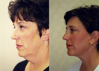 Face and Neck Lift  before 168129