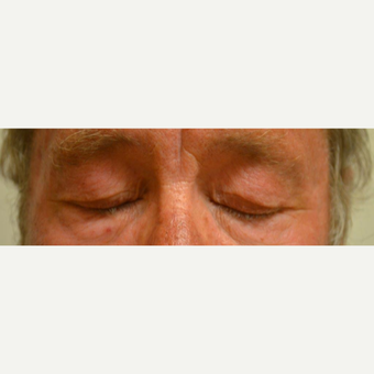 55-64 year old man treated with Eyelid Surgery before 3425570