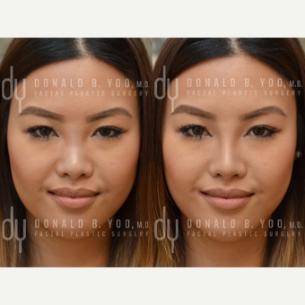 Non Surgical Rhinoplasty before 3322513