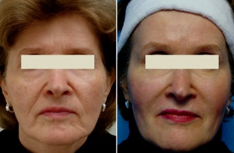 Sculptra before 1214294