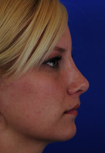 Revision Rhinoplasty 322722