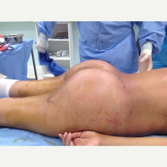 35-44 year old woman treated with Brazilian Butt Lift after 1784067
