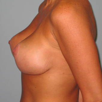 33 year old woman treated with Breast Lift after 3467391