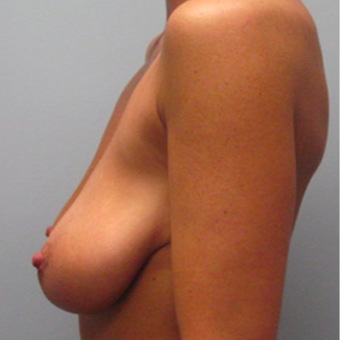 33 year old woman treated with Breast Lift before 3467391