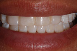 Porcelain Veneers before 1240490