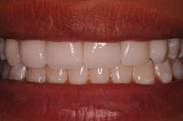 Porcelain Veneers after 1240490
