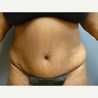 73 year old woman presents for a tummy tuck.  She was tired of the over hanging skin.   after 1635908