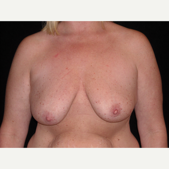 34 year old mother was treated for post partum breast sagging and atrophy with implants and a lift. before 3038456