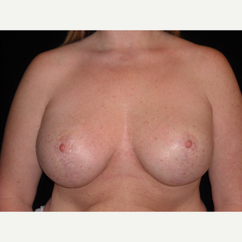 34 year old mother was treated for post partum breast sagging and atrophy with implants and a lift. after 3038456