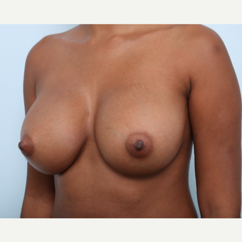 Breast Augmentation after 3425543