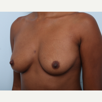 Breast Augmentation before 3425543