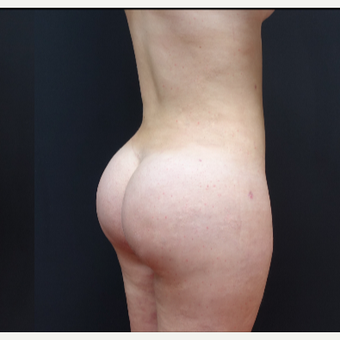 18-24 year old woman treated with Liposculpture after 3315573