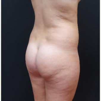 18-24 year old woman treated with Liposculpture before 3315573