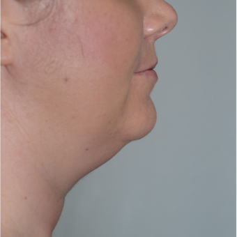 36 year old woman treated with CoolSculpting before 2841331